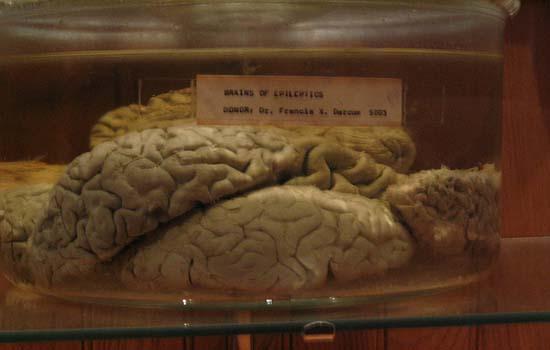 Mutter-Museum-Colon-Image